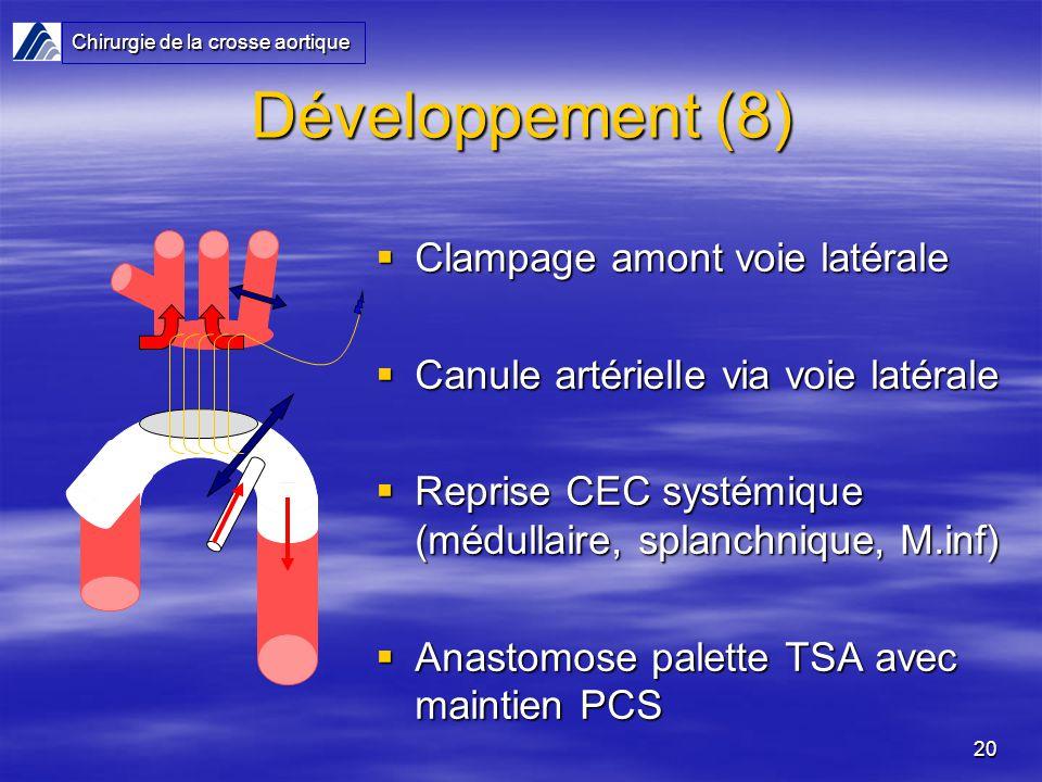 Développement (8) Clampage amont voie latérale