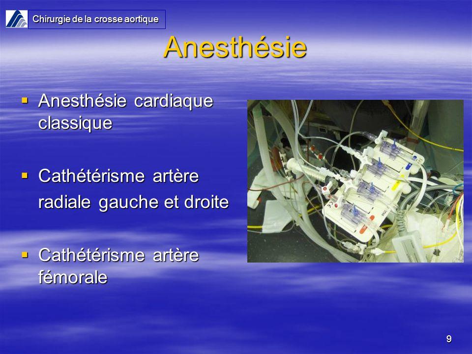 Anesthésie Anesthésie cardiaque classique Cathétérisme artère