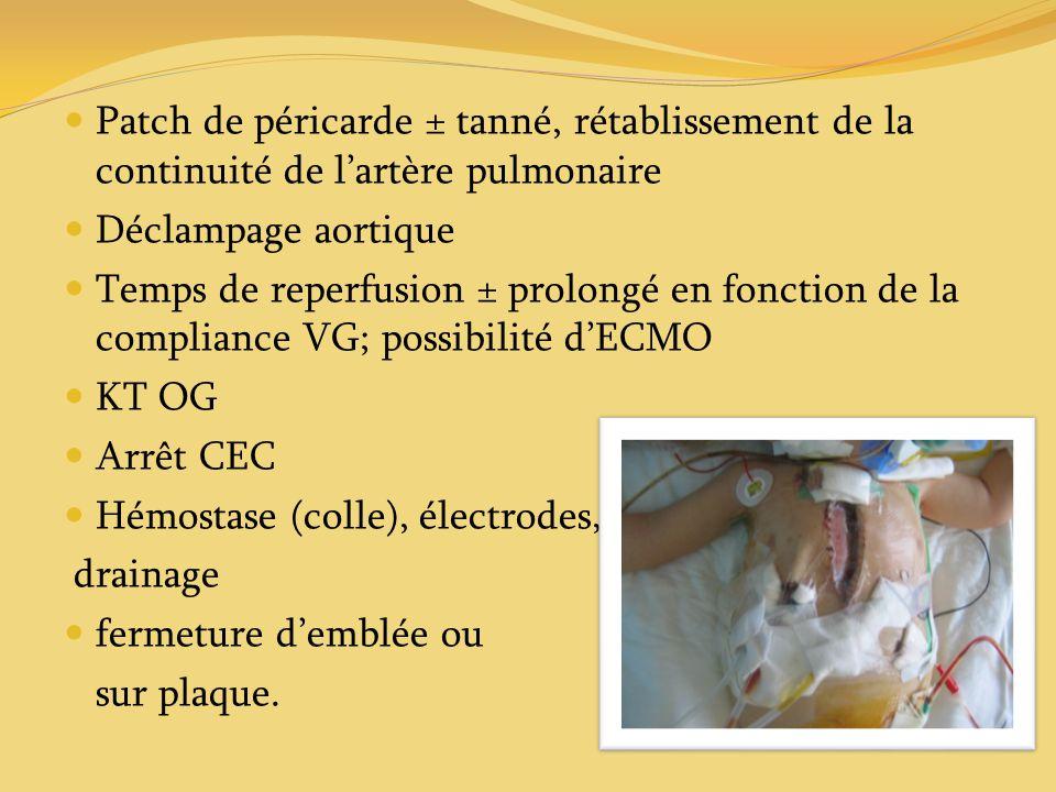 Patch de péricarde ± tanné, rétablissement de la continuité de l'artère pulmonaire