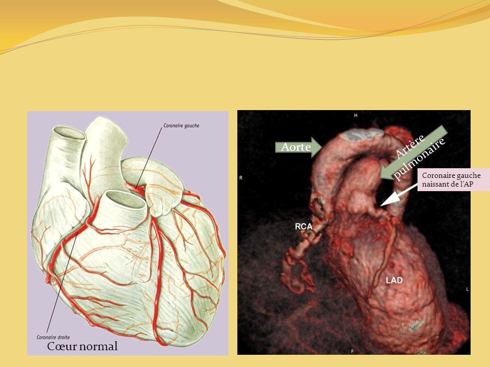 Aorte Artère pulmonaire Coronaire gauche naissant de l'AP Cœur normal