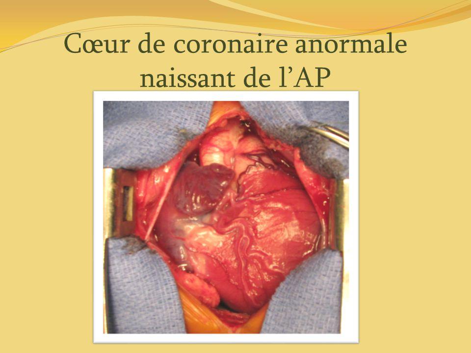 Cœur de coronaire anormale naissant de l'AP