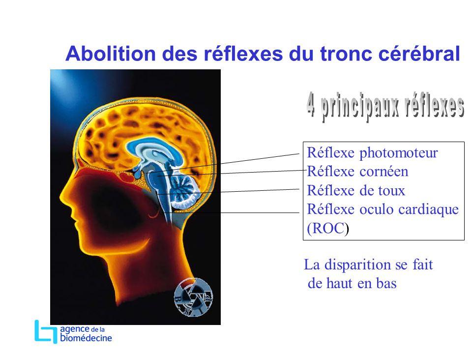 Abolition des réflexes du tronc cérébral