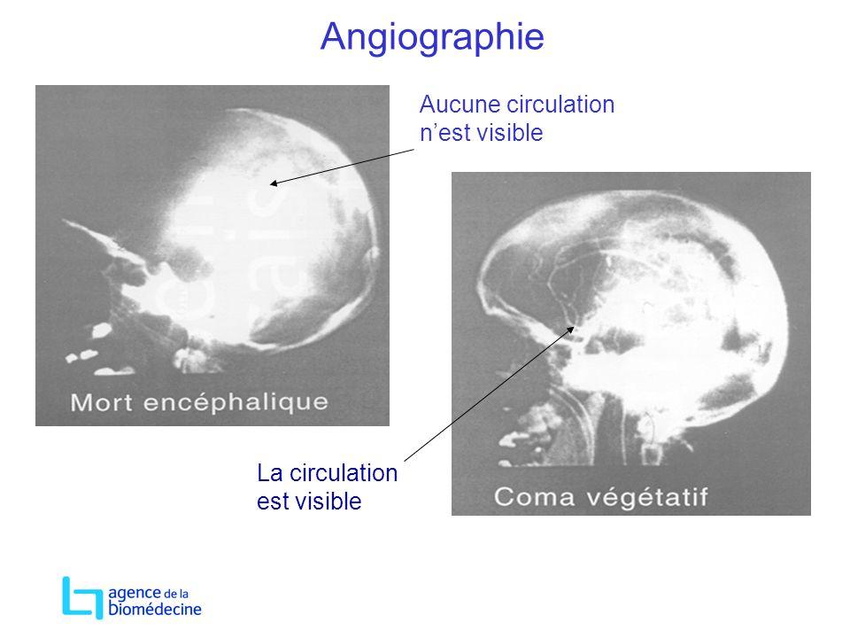 Angiographie Aucune circulation n'est visible La circulation