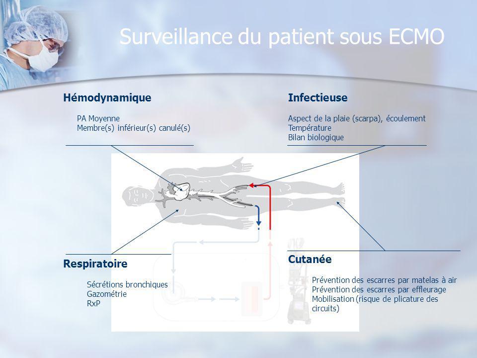 Surveillance du patient sous ECMO