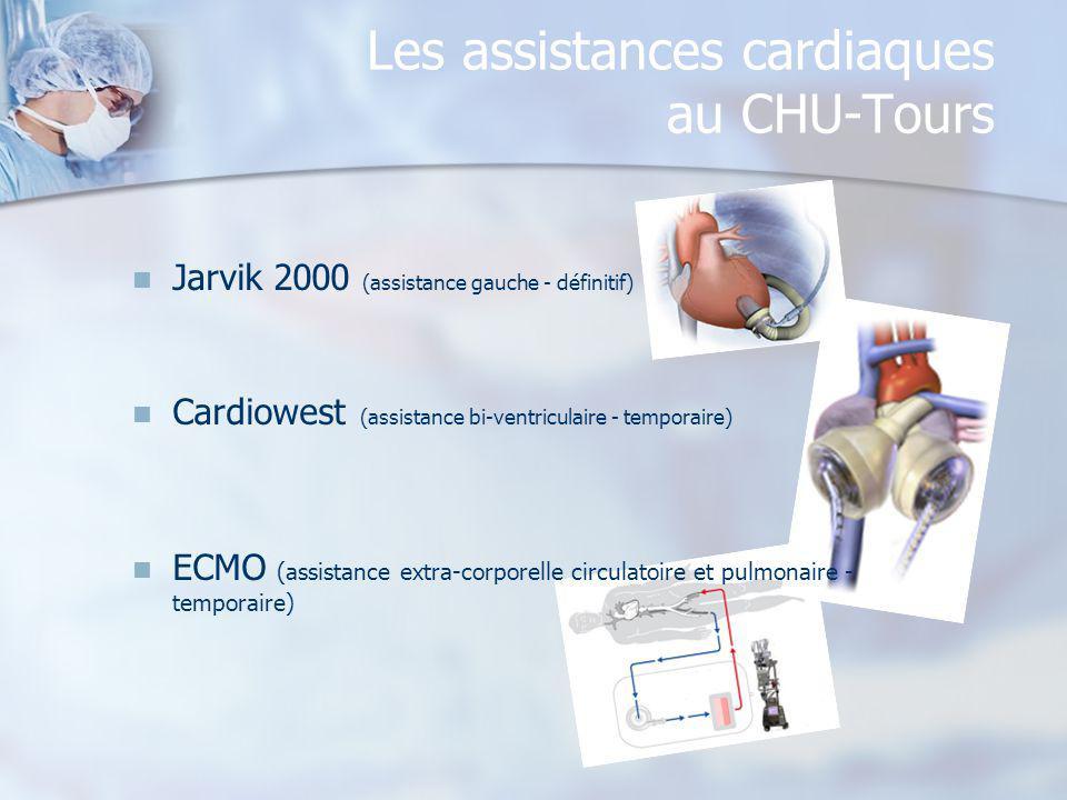 Les assistances cardiaques au CHU-Tours