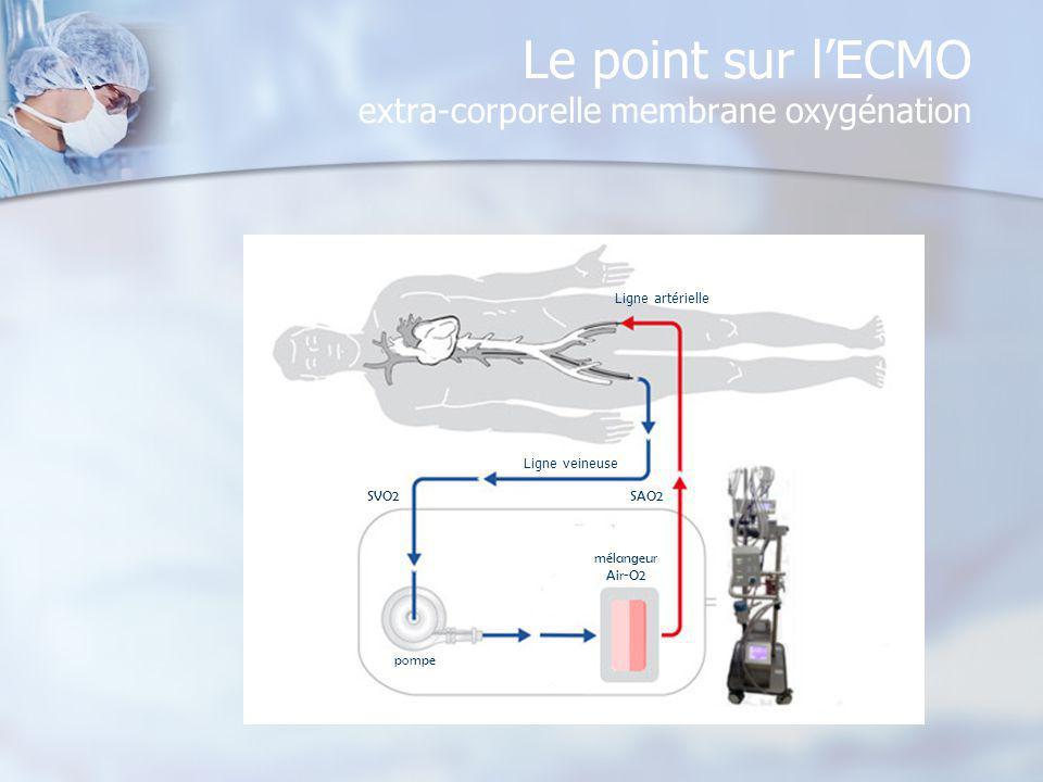Le point sur l'ECMO extra-corporelle membrane oxygénation