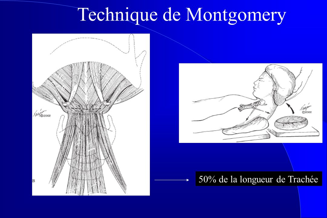 Technique de Montgomery