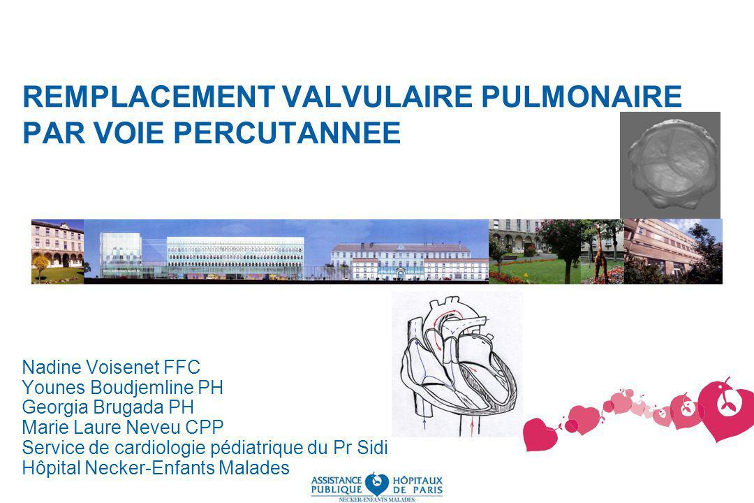 REMPLACEMENT VALVULAIRE PULMONAIRE PAR VOIE PERCUTANNEE