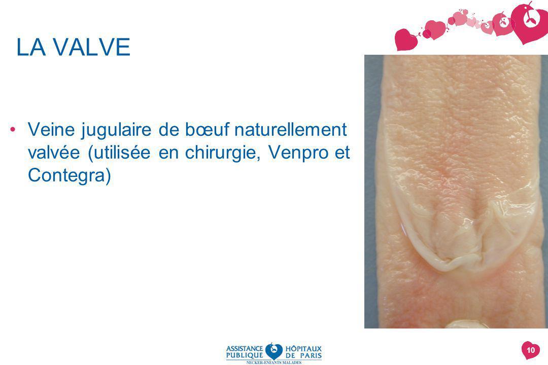 LA VALVE Veine jugulaire de bœuf naturellement valvée (utilisée en chirurgie, Venpro et Contegra)