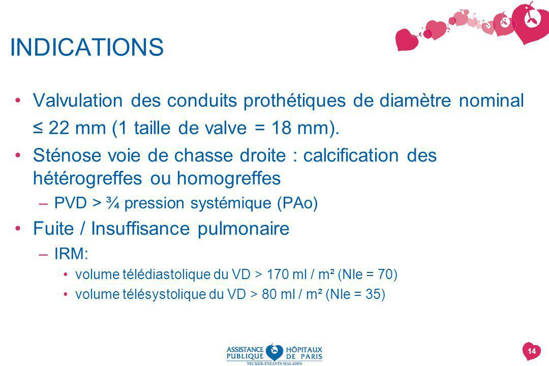 INDICATIONS Valvulation des conduits prothétiques de diamètre nominal