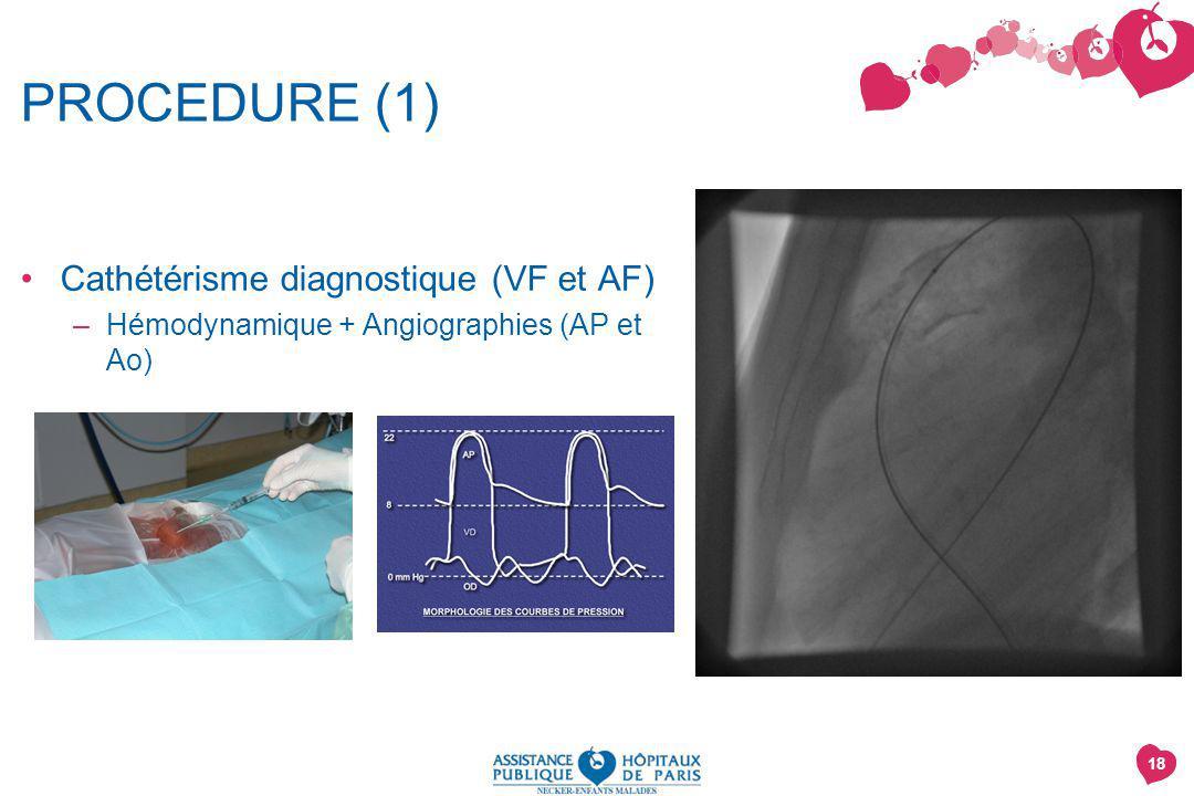 PROCEDURE (1) Cathétérisme diagnostique (VF et AF)