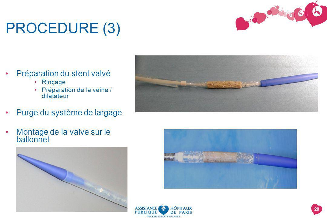 PROCEDURE (3) Préparation du stent valvé Purge du système de largage