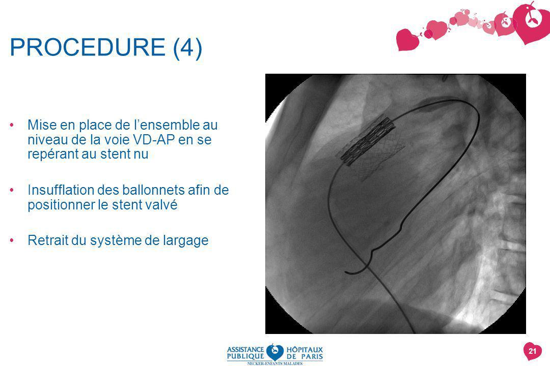 PROCEDURE (4) Mise en place de l'ensemble au niveau de la voie VD-AP en se repérant au stent nu.