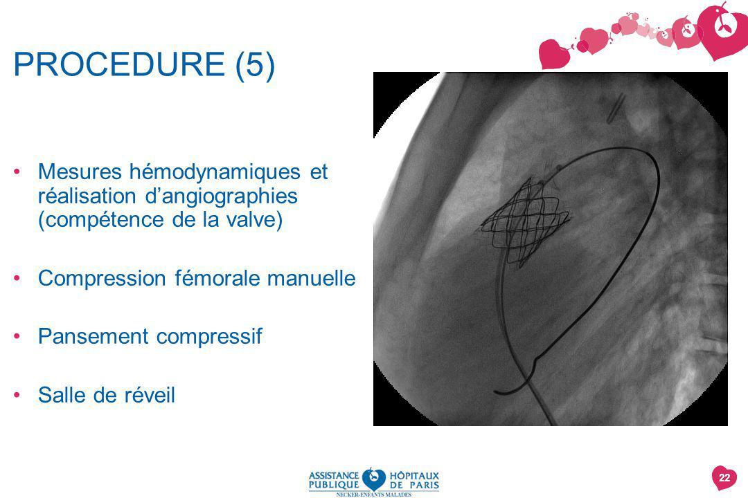 PROCEDURE (5) Mesures hémodynamiques et réalisation d'angiographies (compétence de la valve) Compression fémorale manuelle.