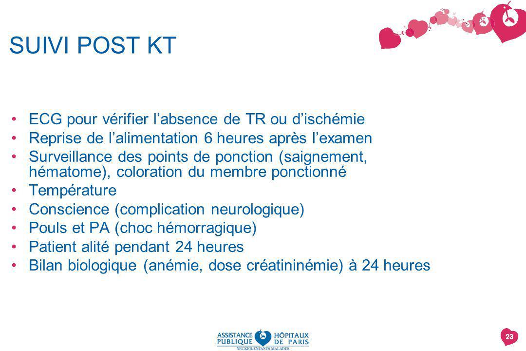 SUIVI POST KT ECG pour vérifier l'absence de TR ou d'ischémie