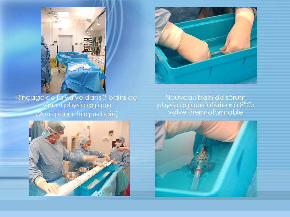 Rinçage de la valve dans 3 bains de sérum physiologique