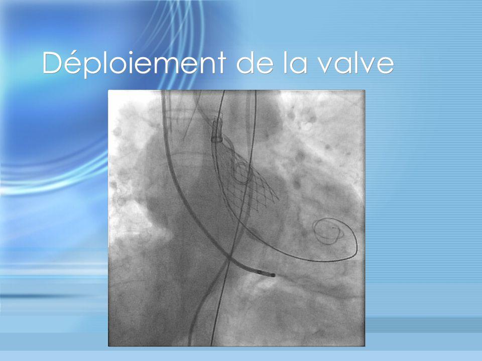 Déploiement de la valve