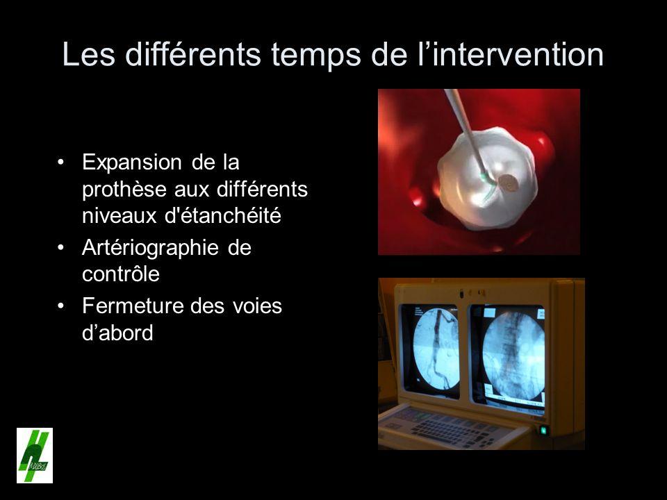 Les différents temps de l'intervention
