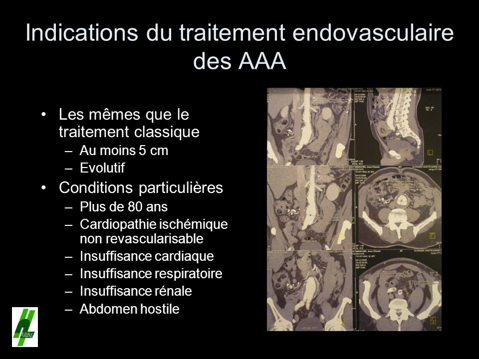 Indications du traitement endovasculaire des AAA