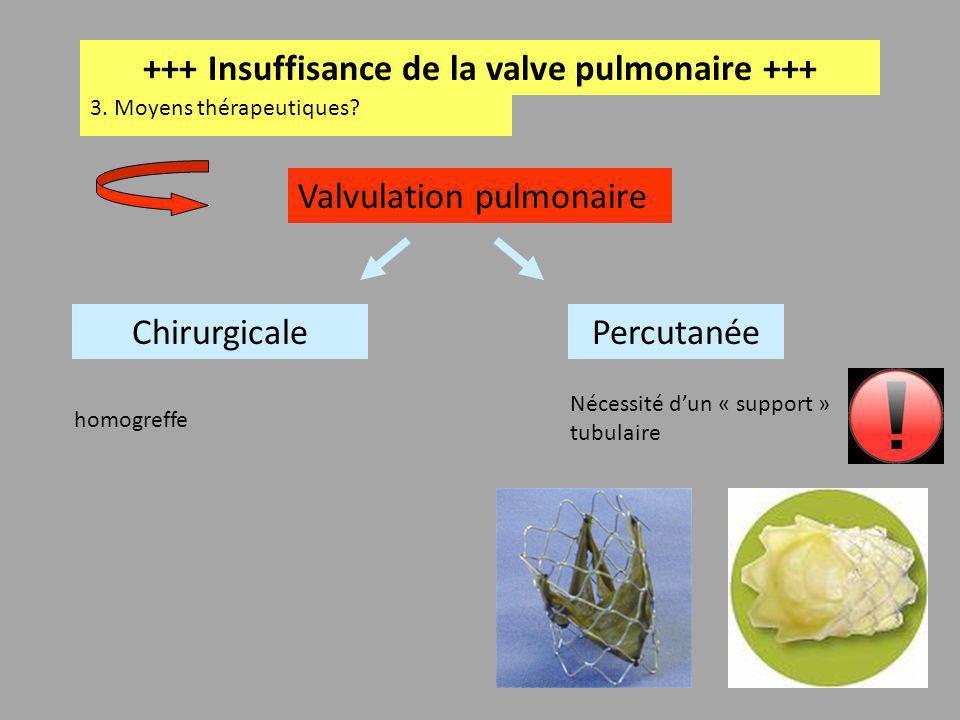 +++ Insuffisance de la valve pulmonaire +++