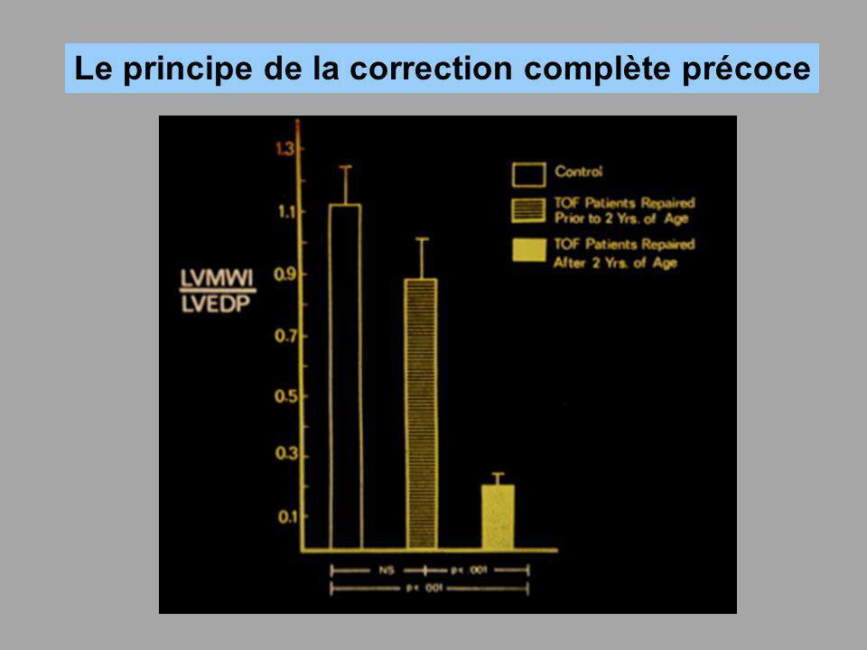 Le principe de la correction complète précoce