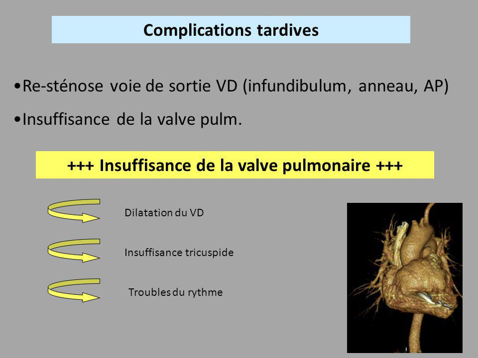 Complications tardives +++ Insuffisance de la valve pulmonaire +++
