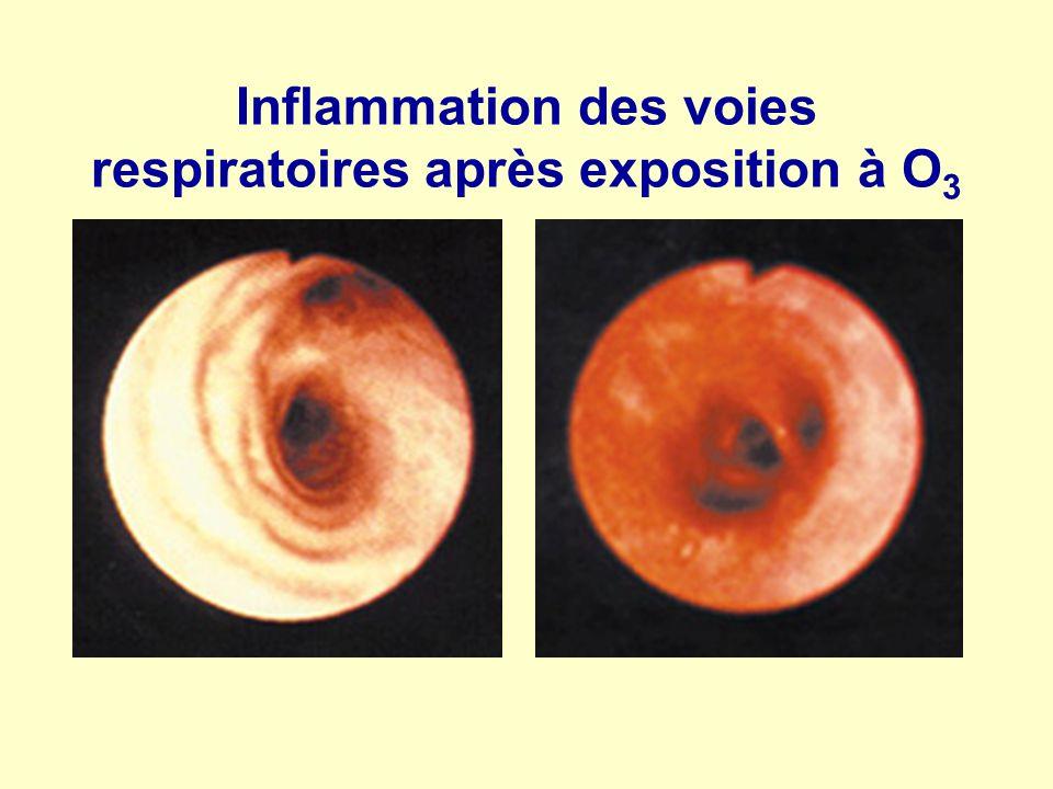 Inflammation des voies respiratoires après exposition à O3