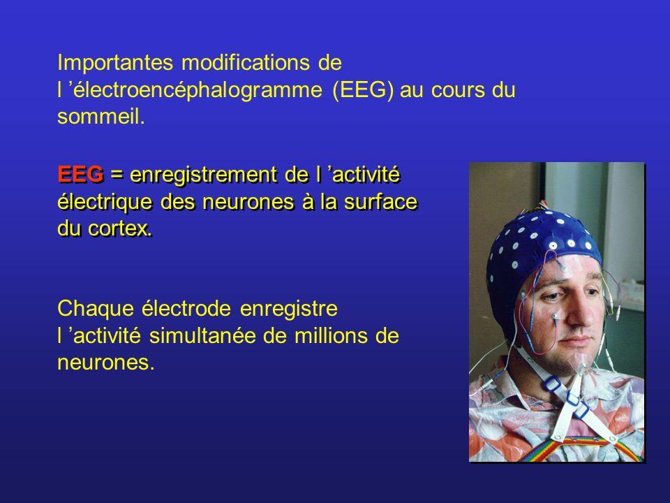 Importantes modifications de l 'électroencéphalogramme (EEG) au cours du sommeil.