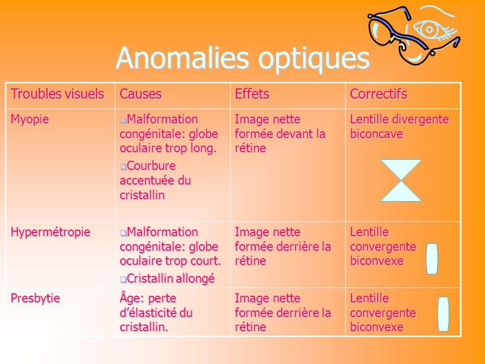 Anomalies optiques Troubles visuels Causes Effets Correctifs Myopie