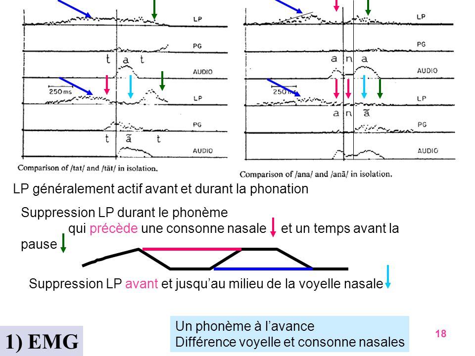 1) EMG LP généralement actif avant et durant la phonation
