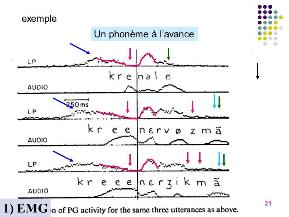 1) EMG exemple Un phonème à l'avance Pleins d'exemples novembre 06