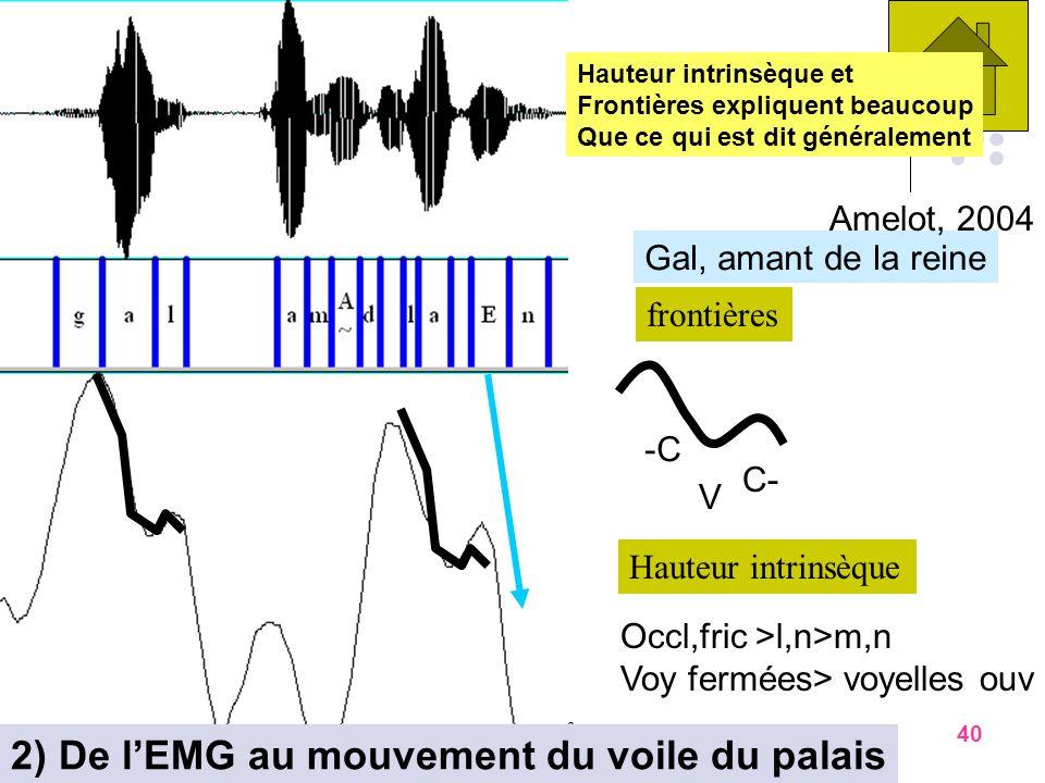 2) De l'EMG au mouvement du voile du palais