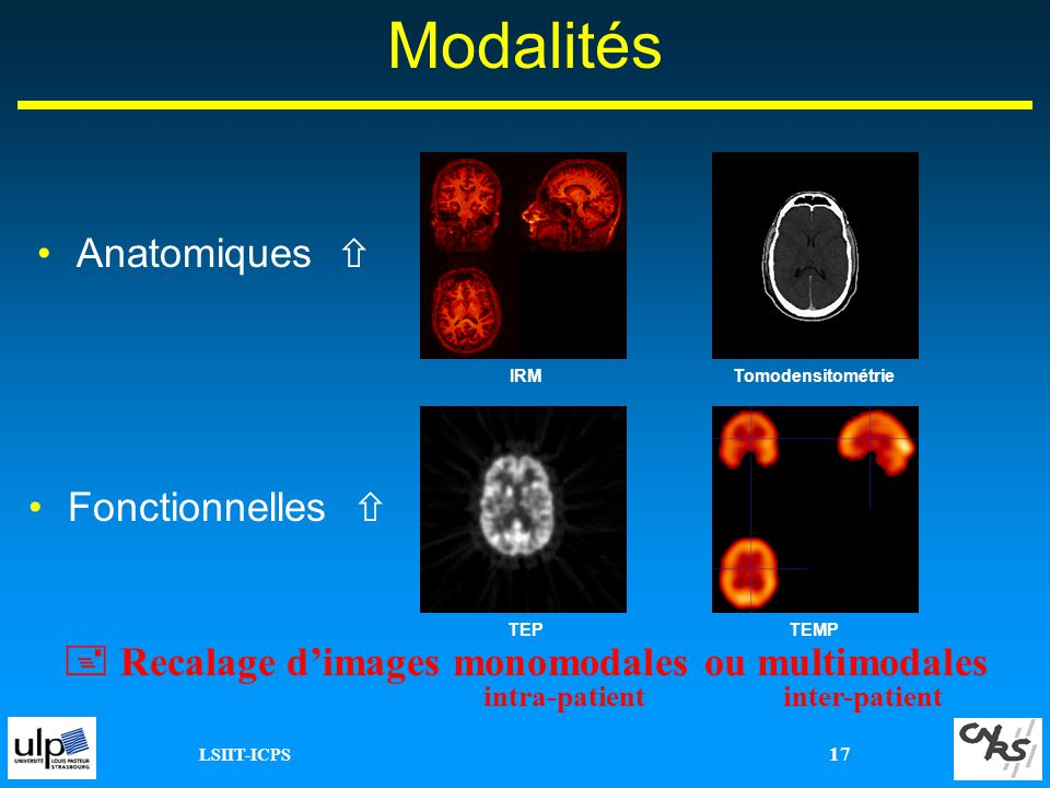  Recalage d'images monomodales ou multimodales