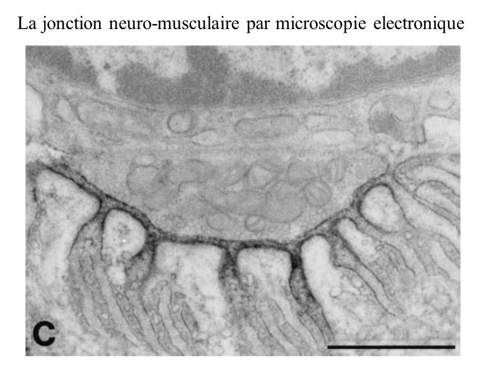 La jonction neuro-musculaire par microscopie electronique