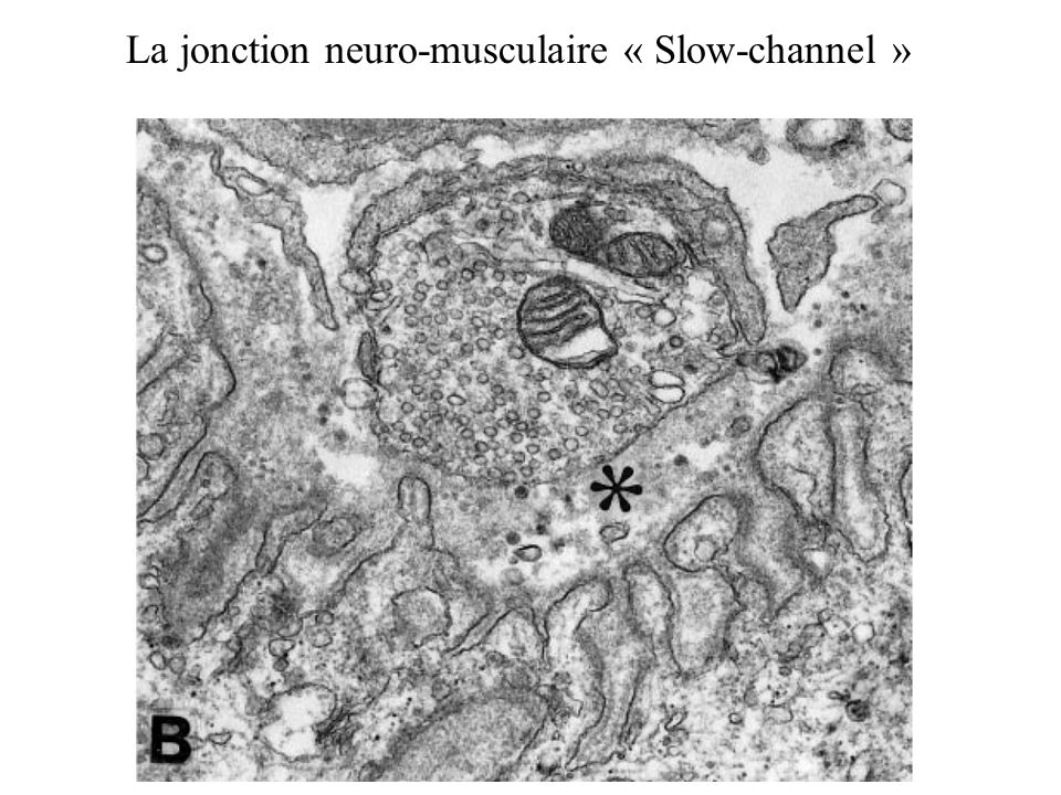 La jonction neuro-musculaire « Slow-channel »