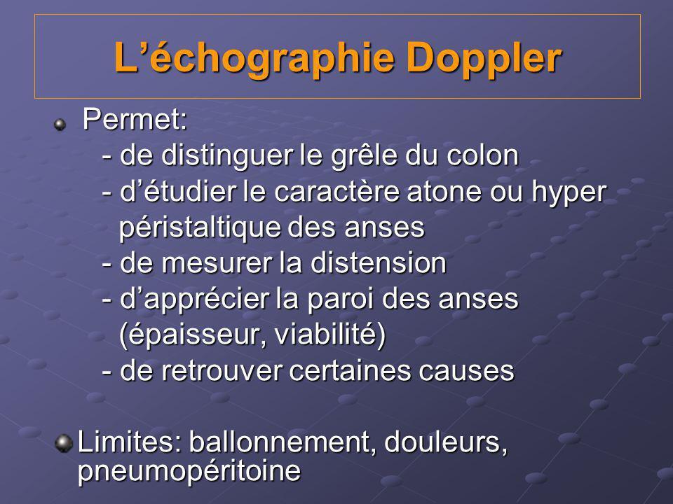 L'échographie Doppler