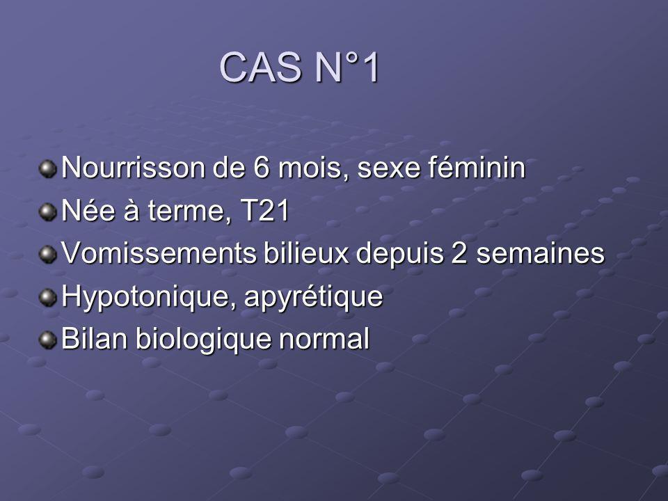 CAS N°1 Nourrisson de 6 mois, sexe féminin Née à terme, T21