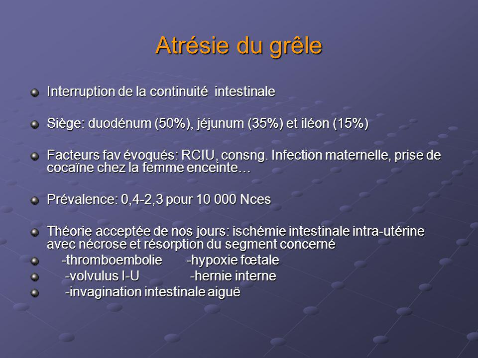 Atrésie du grêle Interruption de la continuité intestinale