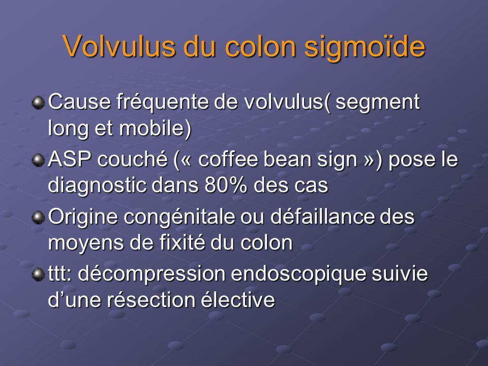 Volvulus du colon sigmoïde