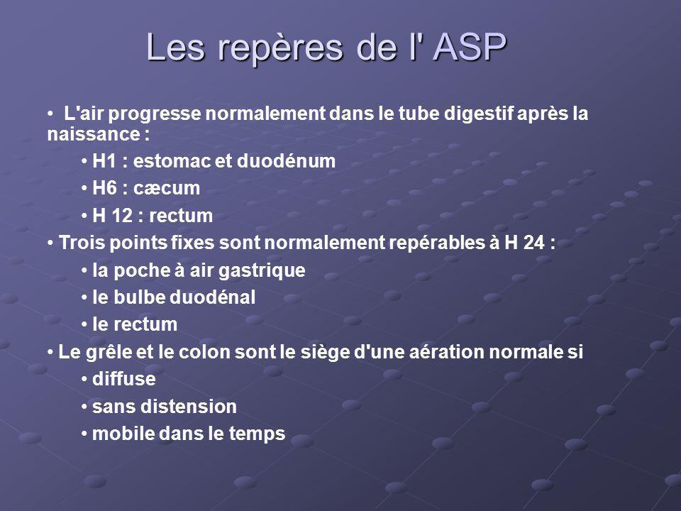 Les repères de l ASP L air progresse normalement dans le tube digestif après la naissance : H1 : estomac et duodénum.