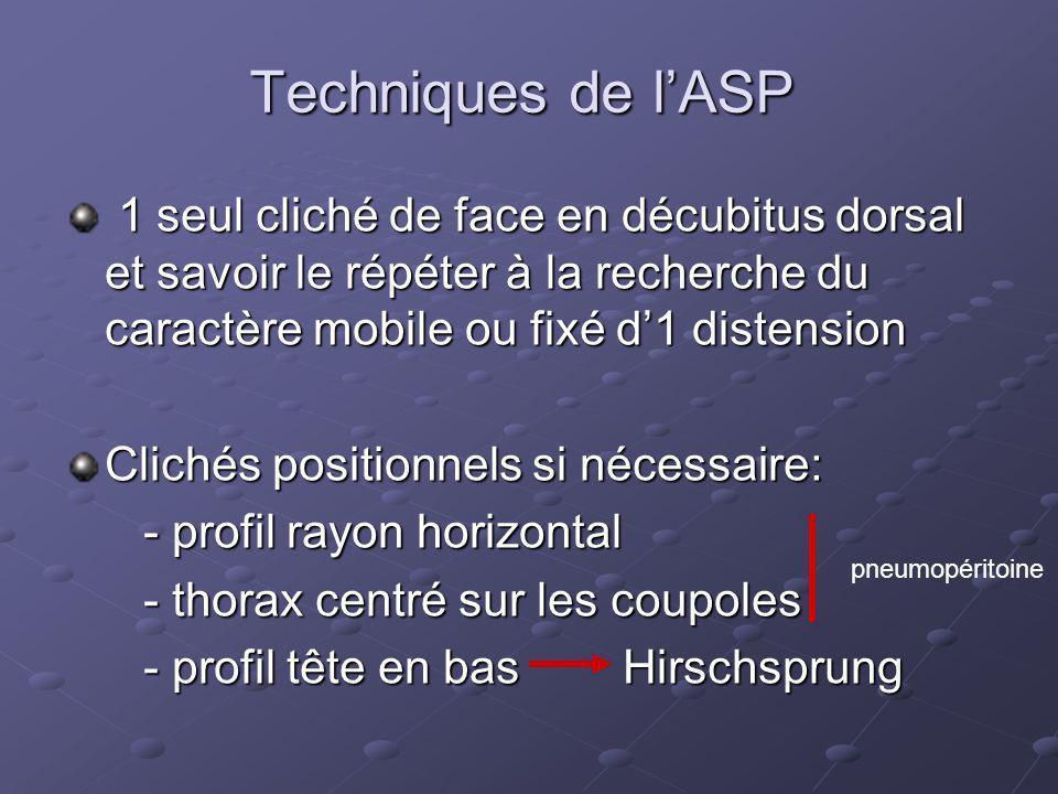 Techniques de l'ASP 1 seul cliché de face en décubitus dorsal et savoir le répéter à la recherche du caractère mobile ou fixé d'1 distension.