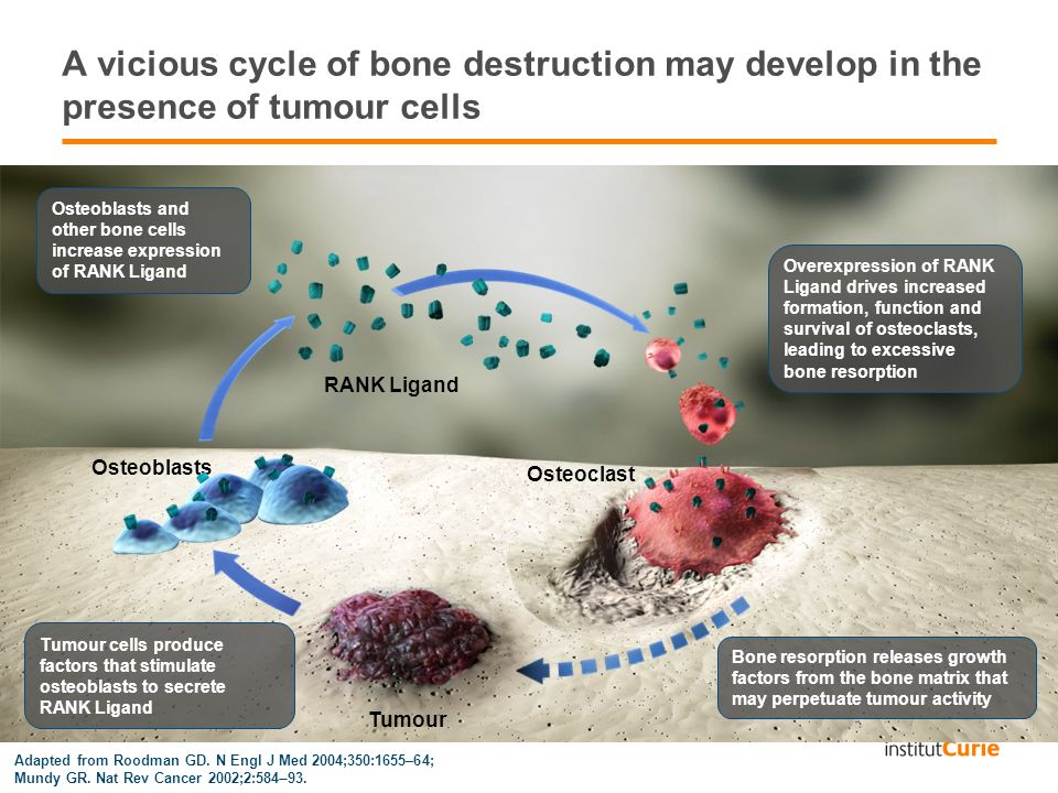 A vicious cycle of bone destruction may develop in the presence of tumour cells