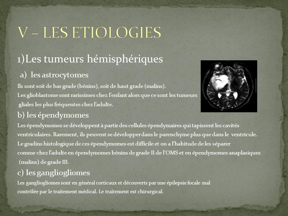 V – LES ETIOLOGIES 1)Les tumeurs hémisphériques a) les astrocytomes