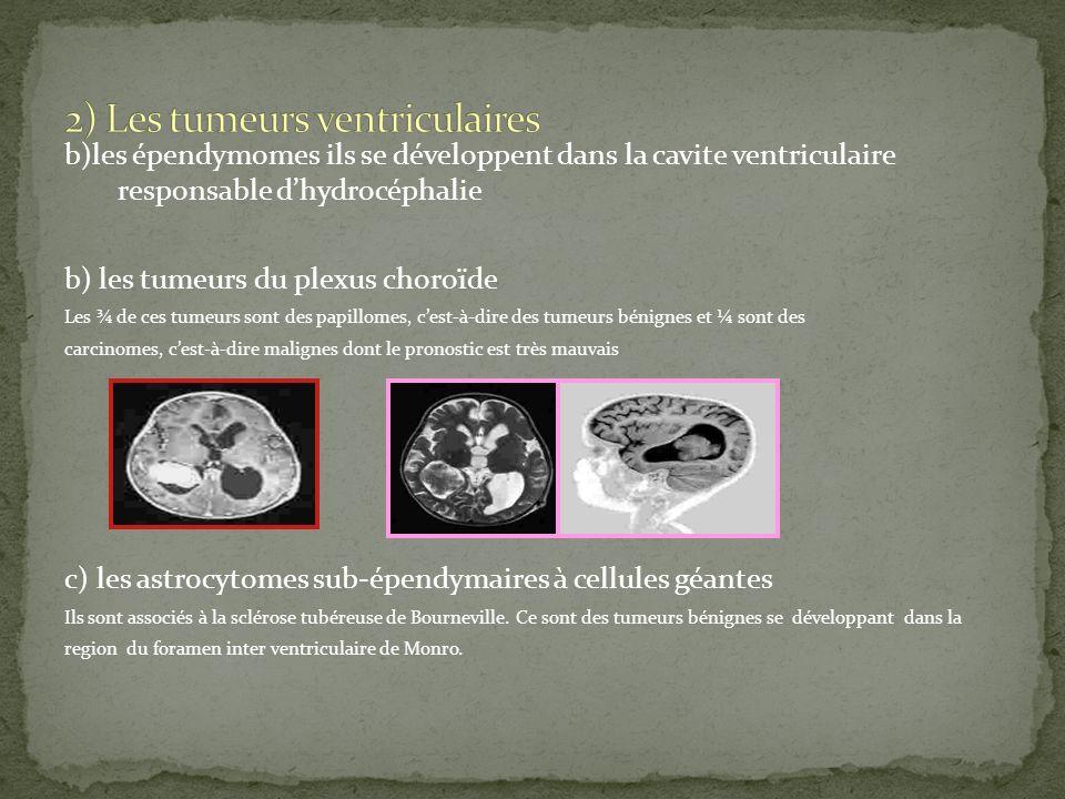2) Les tumeurs ventriculaires