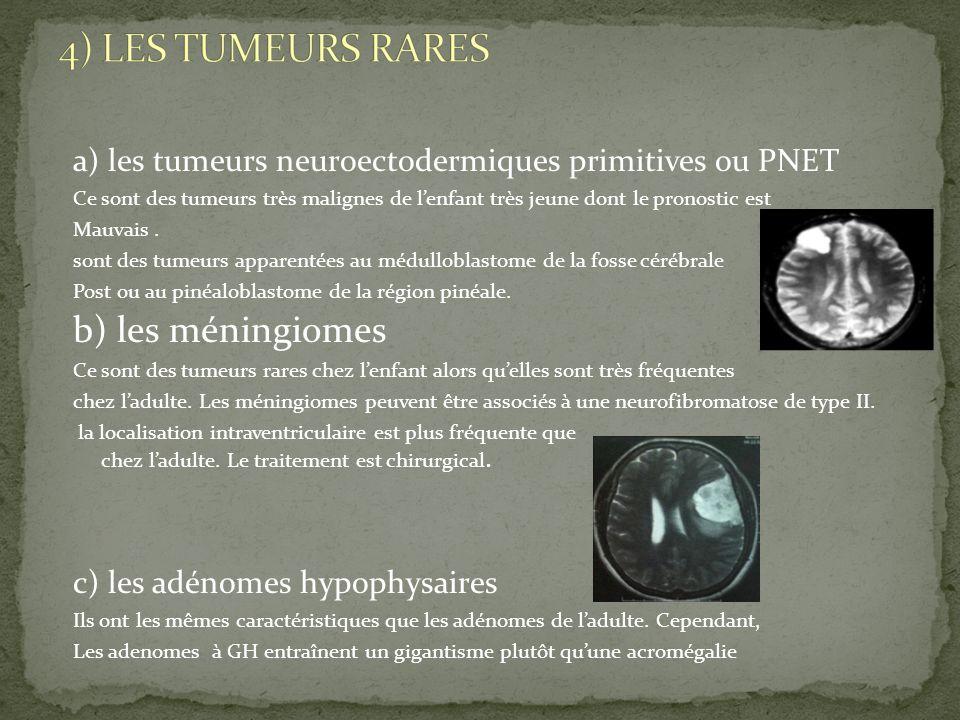 4) LES TUMEURS RARES b) les méningiomes