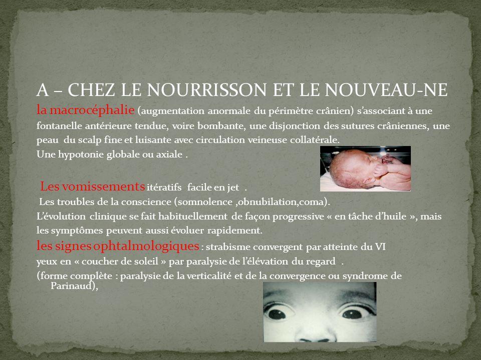 A – CHEZ LE NOURRISSON ET LE NOUVEAU-NE