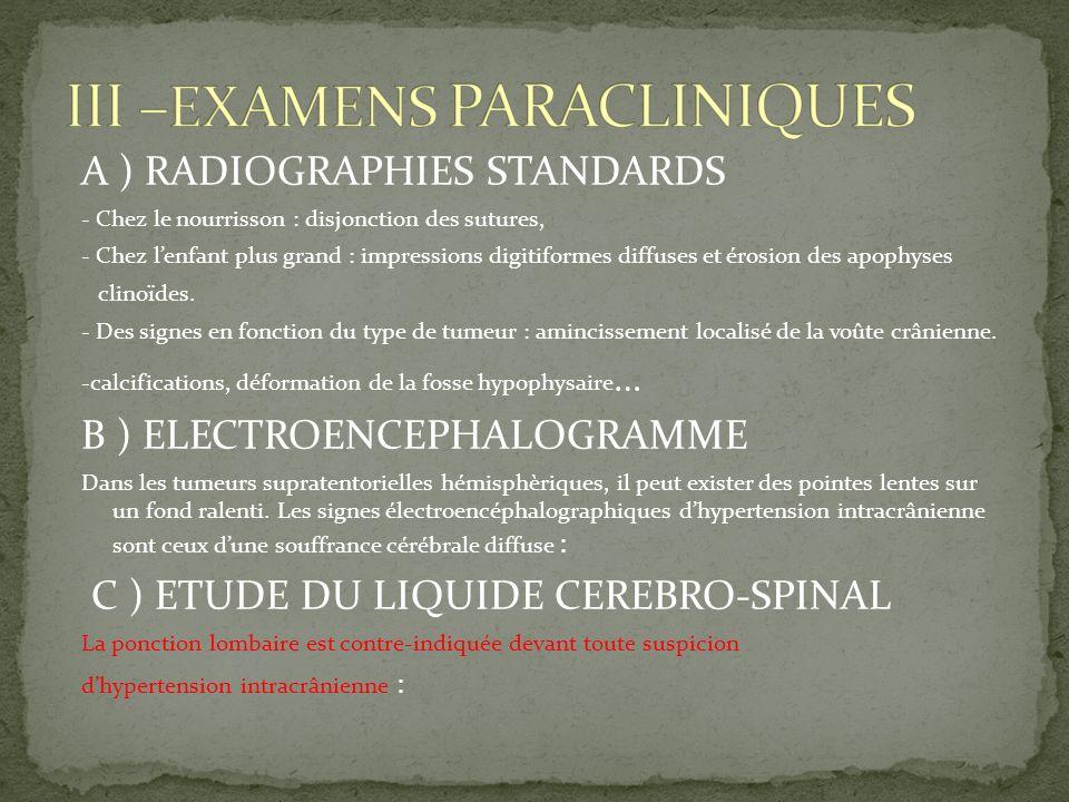III –EXAMENS PARACLINIQUES