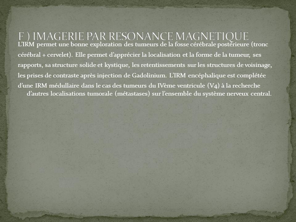 F ) IMAGERIE PAR RESONANCE MAGNETIQUE