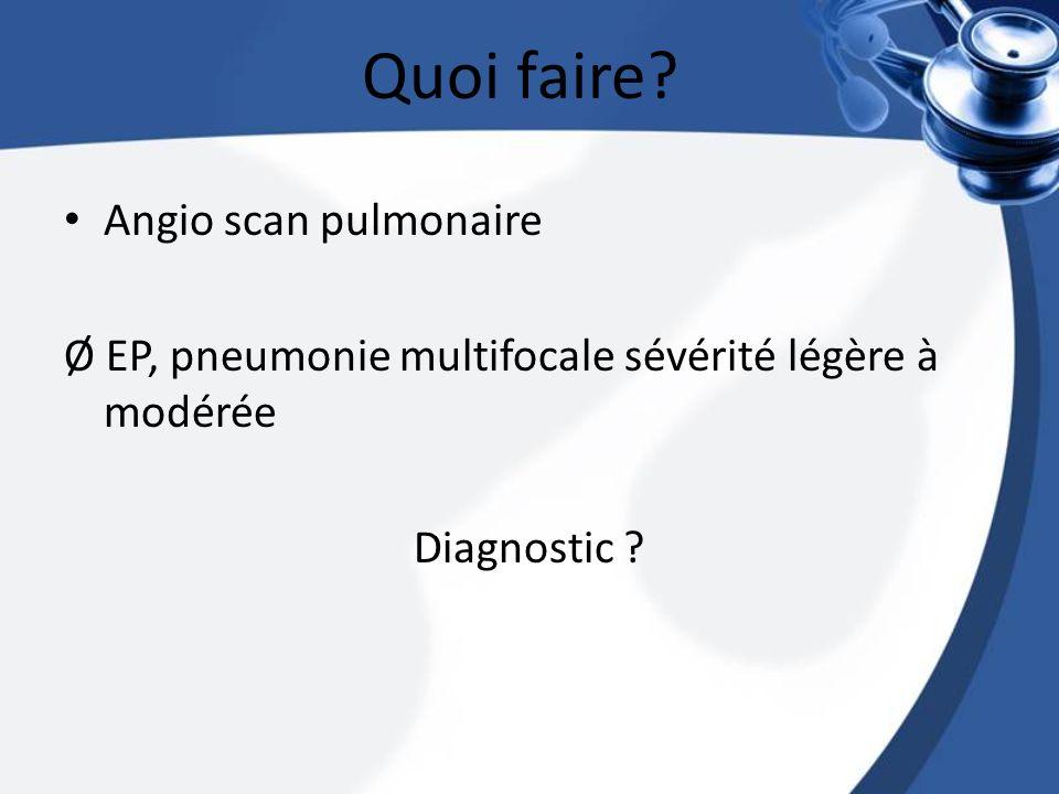 Quoi faire Angio scan pulmonaire