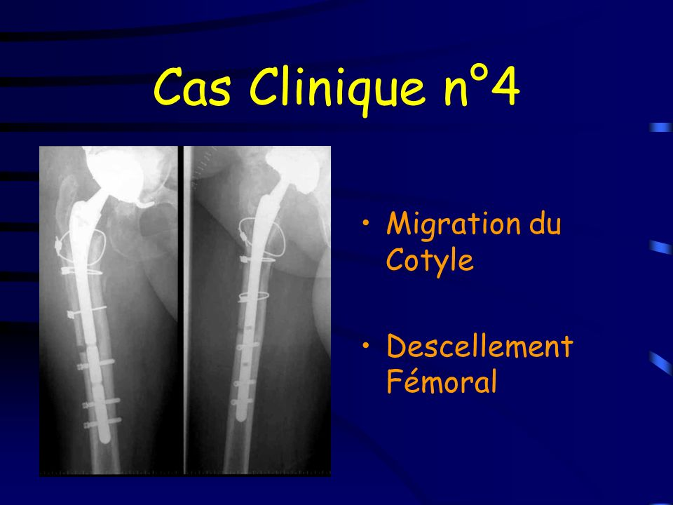 Cas Clinique n°4 Migration du Cotyle Descellement Fémoral